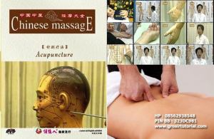 Chinese Massage Acupuncture